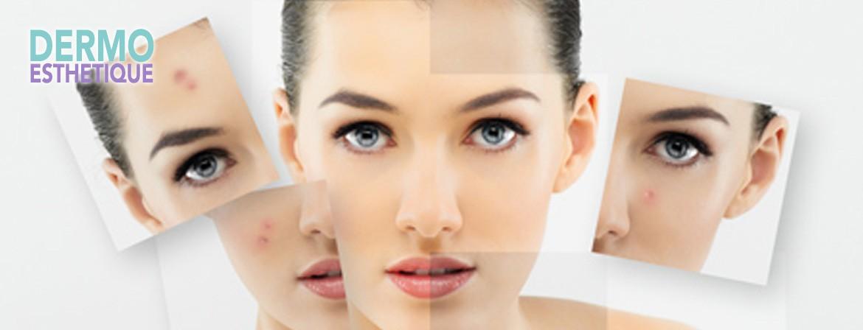 Une méthode de soin complète pour les peaux grasses et leur permettre de se rééquilibrer...